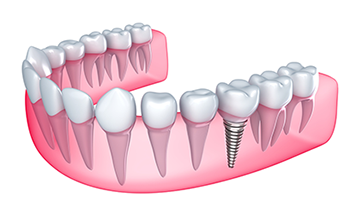 Dental Implants Ridgefield WA